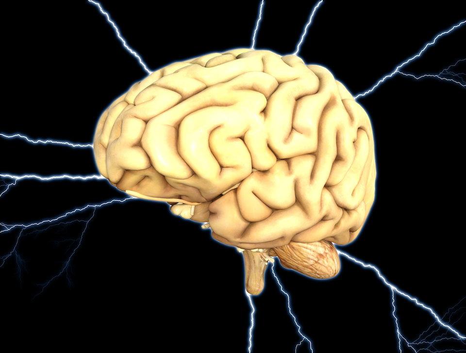 脳 メンタル 電撃